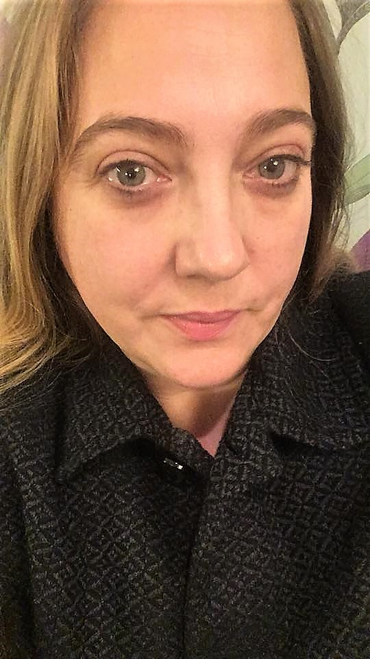 Glowing Skin and sleepy face after Evolve facial at Fenwick