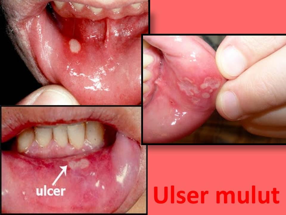 Ulkus Mulut Aftosa Herpes Panduan Praktik Klinis Bagi Dokter