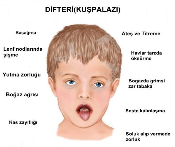 Difteri Hastalığı Nedir, Kuşpalazı Hastalığı Nedir, Difteri Belirtileri, Difteri Tedavisi