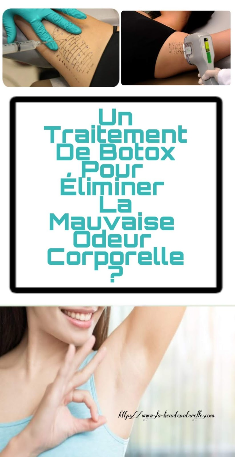 Un Traitement De Botox Pour Éliminer La Mauvaise Odeur Corporelle?