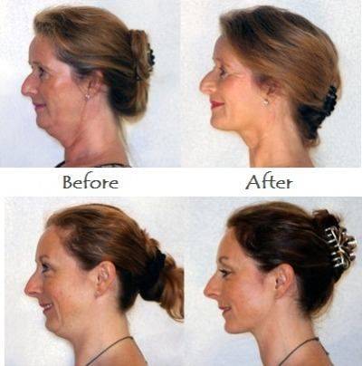 A Lot Of Individuals Who Are Not Fat By Nature Can Suffer From Hereditary Dual Chin This Is Attributable To Face Sag On The Jowls Over Jawline And