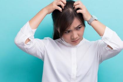 Mengenali Gejala Dan Juga Cara Untuk Mengatasi Eksim di Kulit Kepala Hingga Tuntas