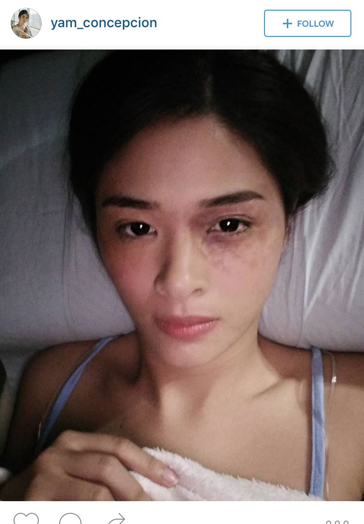 fashion pulis insta scoop yam concepcion plays abused ofw in 39 magtanggol 39. Black Bedroom Furniture Sets. Home Design Ideas