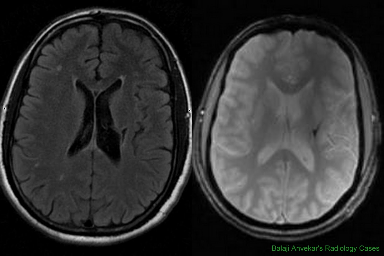 Dr Balaji Anvekar S Neuroradiology Cases Role Of T2 Gre