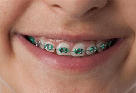 الوان تقويم الاسنان 20-202102