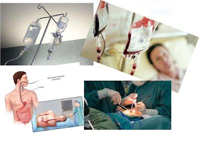 Obat Muntah Darah, Terbukti Ampuh Sembuhkan Penyakit Muntah Darah Secara Efektif Dan Cepat Sampai Tuntas