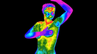 Thermography to Assess Breast Inflammation in breast cancer survivors