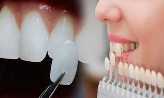Cách sửa răng khểnh vừa an toàn vừa hiệu quả-2