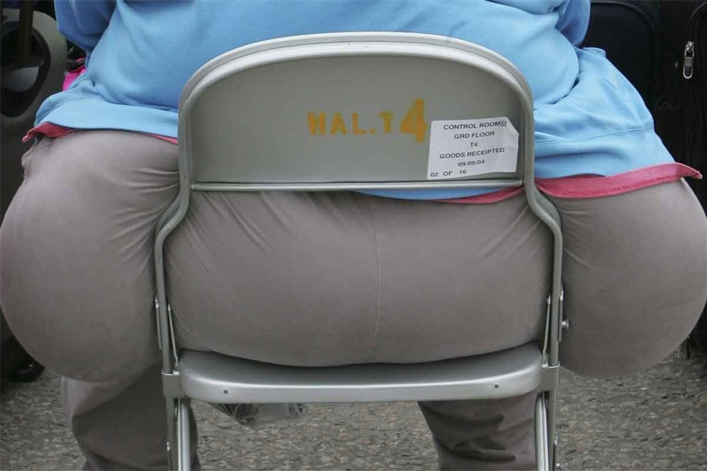 Komplikasi Obesitas dan Usaha Penanggulangannya