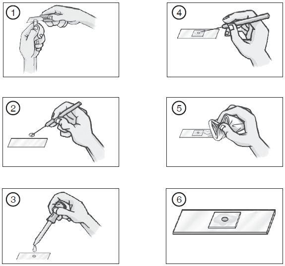 Langkah-langkah Cara Membuat Preparat Irisan Basah