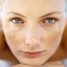 Huile de Noisette - Traitement naturel contre l'acné et les boutons