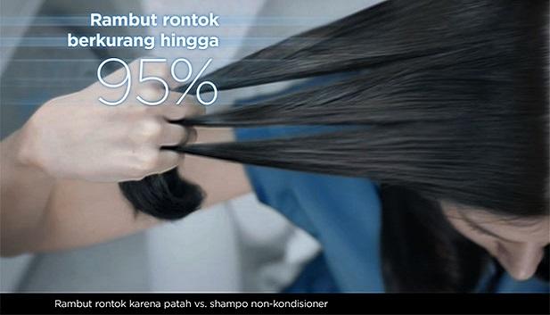 Penyebab Dan Tekhnik Mudah Mengobati Rambut Gatal Dan Rontok bersama Bahan Alami Penyebab Dan Tekhnik Mudah Mengobati Rambut Gatal Dan Rontok bersama Bahan Alami