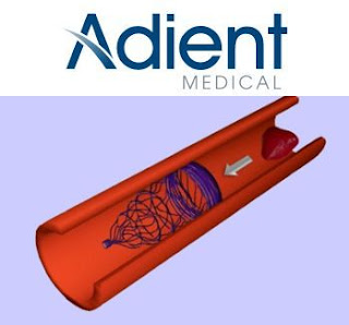 Adient Medical Develop Absorbable IVC Filter To Prevent Pulmonary Embolism
