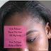How Relaxer Burnt The Hair Off My Scalp + How To Treat Relaxer Burns