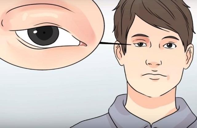 Pinkeye Conjunctivitis