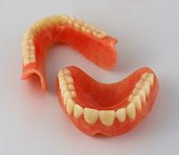 Protesa gigi atau gigi palsu dapat ditanggung bpjs