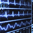 Electrocardiogram (EKG ) & Echocardiogram in Houston