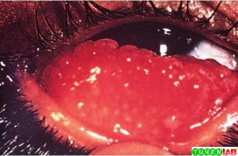 Chlamydia In The Eye [Microbiology] Atlas o...