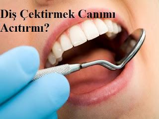 Diş Çektirmek Canımı Acıtırmı?