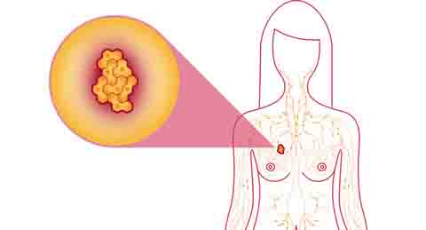 What is Breast Cancer ICD 10?