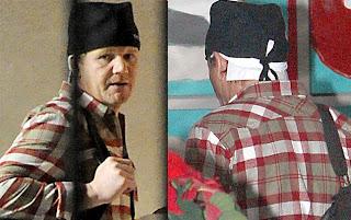 Gordon Ramsay Surgery  Gordon Ramsay Botox