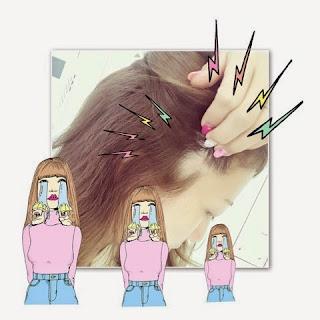芸能人の円形脱毛症事情!その原因と治療法は?