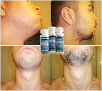 Kirkland Signature - Produk Yang Mengandung Minoxidil Aman dan Ampuh Menumbuhkan Kumis Jenggot dan Brewok