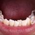 Niềng răng chỉnh móm thế nào?