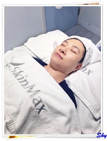 增加膠原, 緊緻輪廓線條 - SkinMax「THER-膠原槍」療程