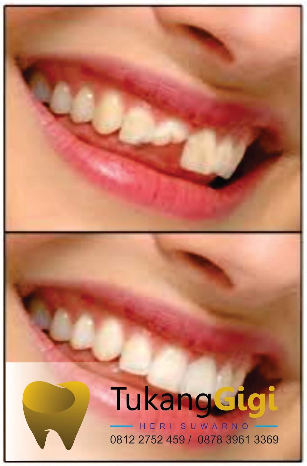 Faktor internal adalah penyebab pertama dari timbulnya gigi patah karena  berkurangnya kalsium dalam enamel dan matriks gigi yang dapat mengakibatkan  gigi ... d3f0971e6c
