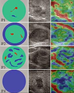 elastografie nodul tiroidian