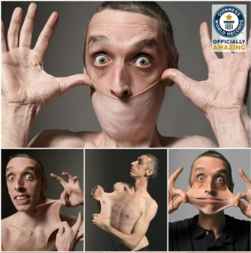 Meet The Man Who Set Guinness World Record For Stretchiest Skin In The World