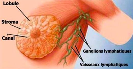 Vous en buvez tous les jours et vous ignorez qu'il est la cause principale du cancer du sein !