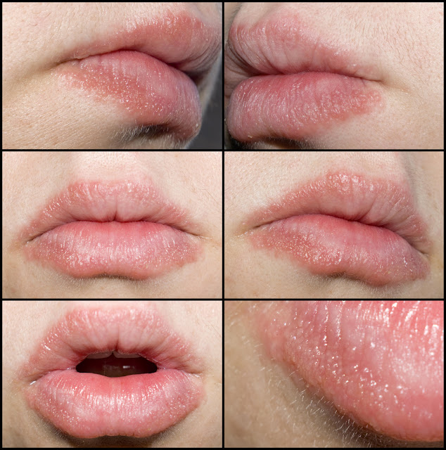 broken lips