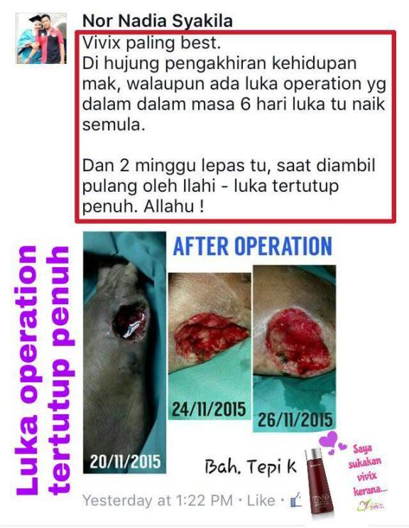 vivix bantu pulihkan luka pembedahan