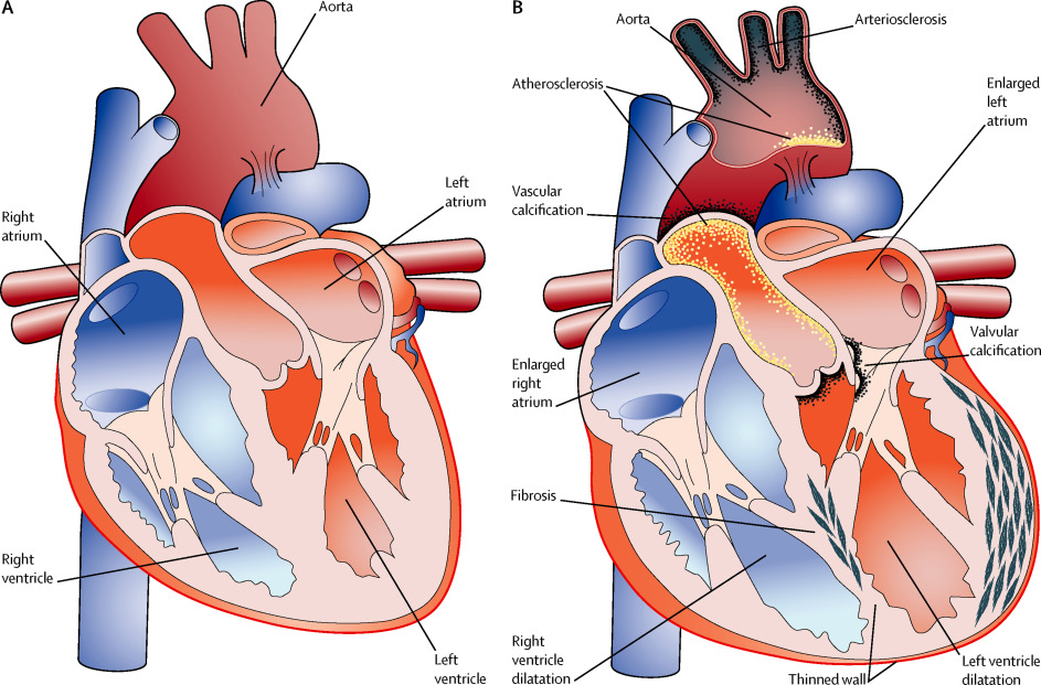 Coronary Heart Disease Treatment And Prevention