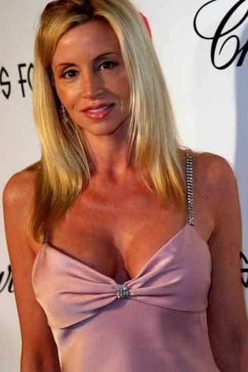 Camille Grammer Plastic Surgery Before And After Nose Job