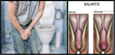 Daftar Obat Penis Bengkak Ada Rasa Seperti Terbakar Paling Mujarab