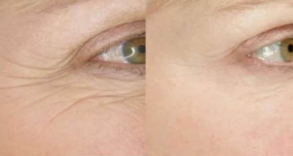Reduces Wrinkles in a Short Time!