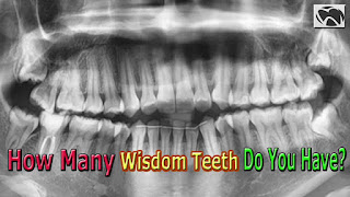how many wisdom teeth do you have