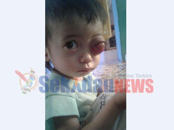 Seorang Anak 1 Tahun di Sekadau Alami Mata Bengkak