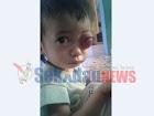 BREAKING NEWS: Sedih! Seorang Anak 1 Tahun di Sekadau Alami Mata Bengkak