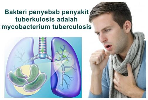 Cara Mengobati Penyakit Tuberkulosis Yang Aman Dan Alami