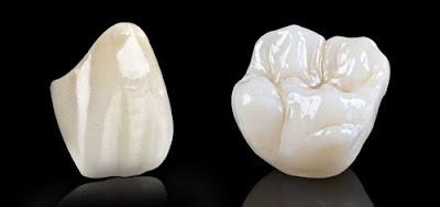 Răng sứ Emax được coi là đỉnh cao