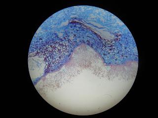 Penicillium with conidiophores