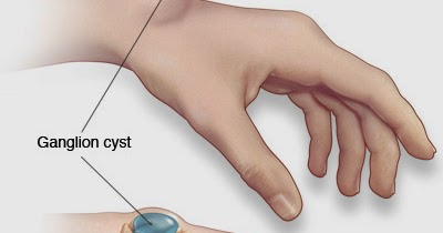 Tom's Physiotherapy Blog: Fingers: Ganglion Cysts