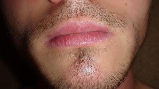 Cara Menumbuhkan Kumis Jenggot dan Brewok Dengan Minoxidil
