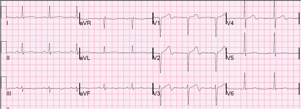 Dr  Smith's ECG Blog: August 2011