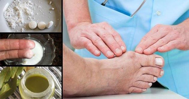 3 maneras simples, pero eficaces para deshacerse de los juanetes sin pasar por cirugías