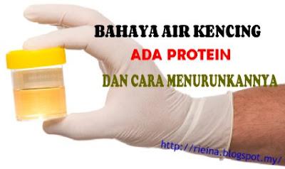Cara Turunkan Protein Dalam Air kencing